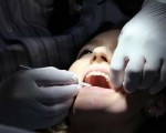 cisteni zubu
